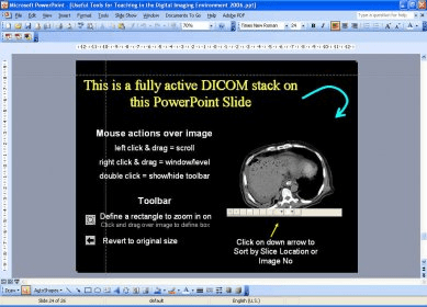 RadFiler DICOM for PowerPoint Download - Put DICOM images into