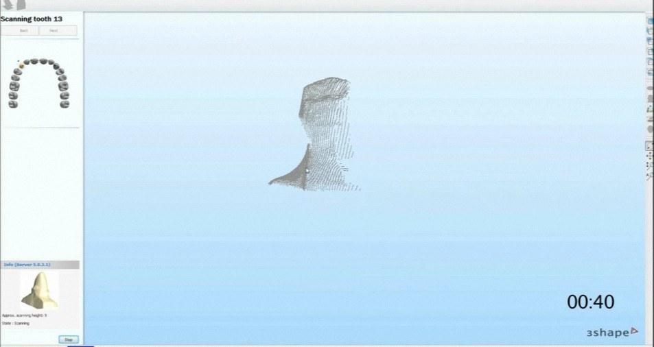 3Shape Dental System -  Get the software safe and easy