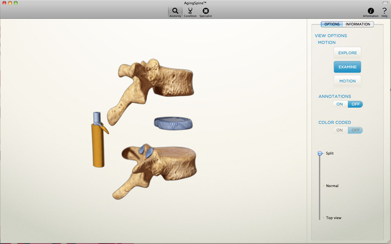 AgingSpine screenshot